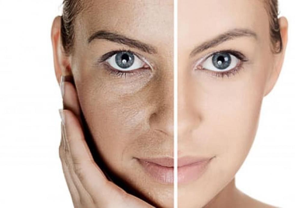 У жінок з віком погіршується зовнішність