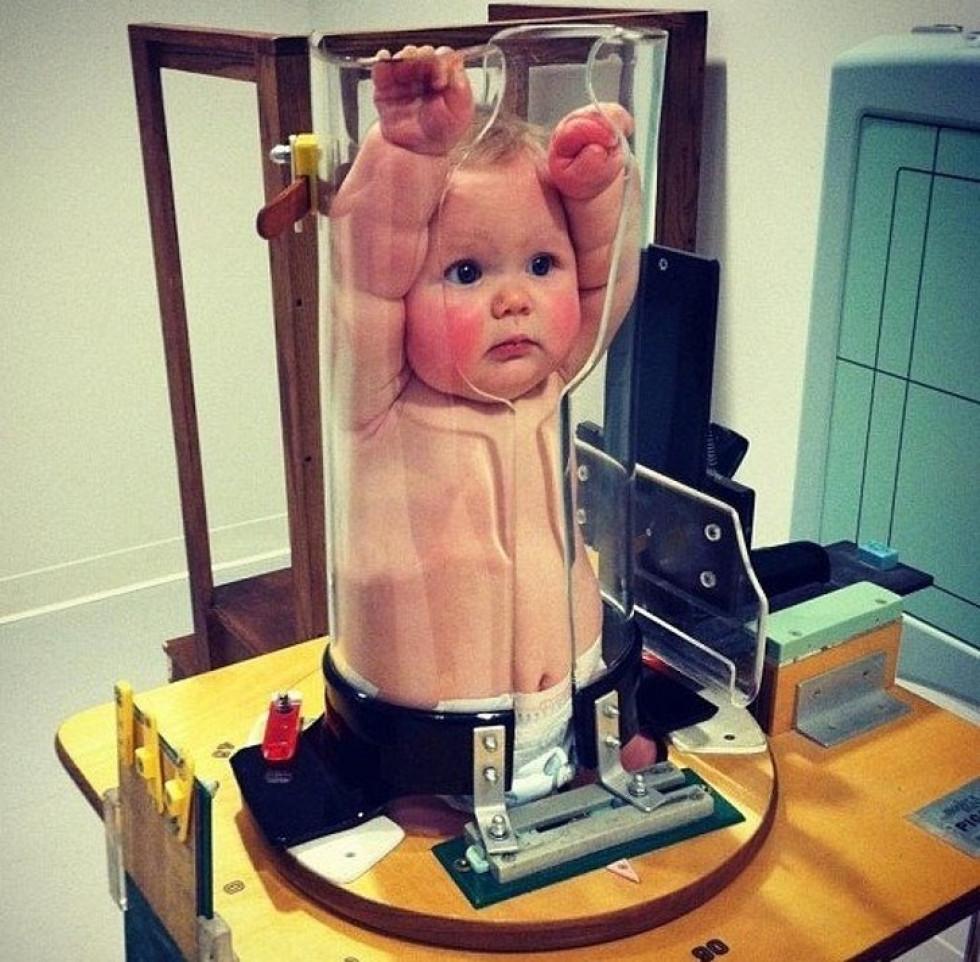 Таким чином дитині роблять рентген